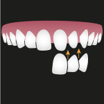 dental veneers in roseville