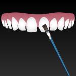 dental bonding roseville