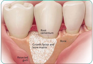 bone grafting dentist in roseville