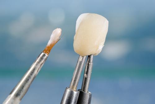 dental bonding in roseville