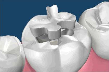 dental inlay in roseville ca