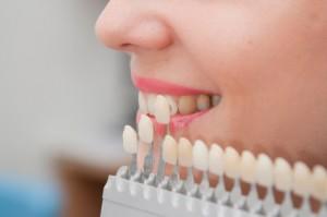 dental veneers roseville ca